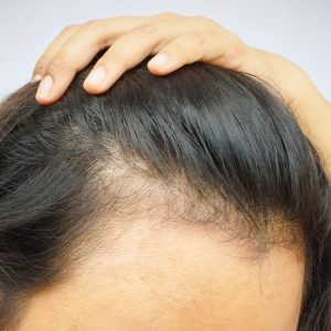 hair pieces for thinning hair