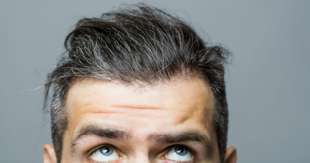 best hairpieces for thinning crown